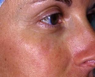 Age Spots / Sun Damage