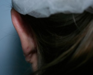 Otoplasty / Protruding Ears
