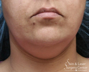 truSculpt Fat Reduction