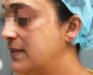 Melasma / Pregnancy Mask