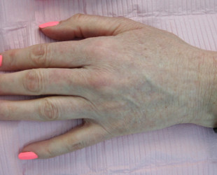 Before & After Brown Spot Removal on hands using Nd:YAG Laser