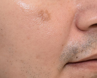 Mole / Growth Removal