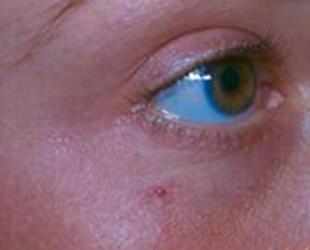 Rosacea / Facial Vessels
