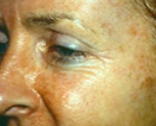 Skin Rejuvenation / Photofacials