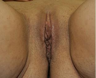 Vaginal Rejuvenation / Tightening