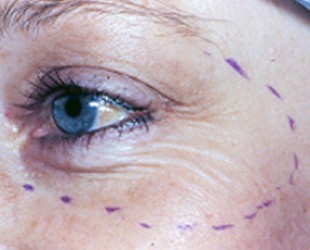 Wrinkle Reduction