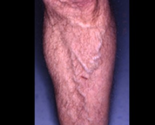 Leg Vein Removal / Sclerotherapy